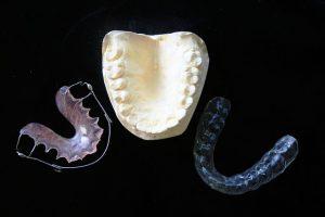 Gutiere Ortodontice